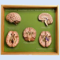 5 Gehirnschnittmodelle