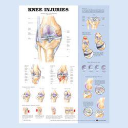 """Diagramm """"Knieverletzungen"""""""