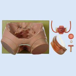 Blasenendoskopisches Modell ohne Blasenerkrankungen