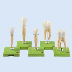 SOMSO – Zahnmodelle, teilweise zerlegbar, ca. 8-fach vergrößert