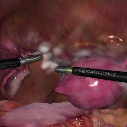 LapSim Modul Hysterektomie