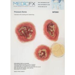 MedicFX - Set Druckwunden