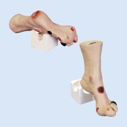 Nasco Wilma Fuß-Wundpflegemodell