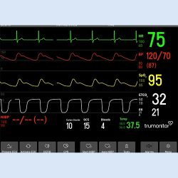 Trumonitor Patientenmonitor Simulator