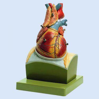 Herz auf Zwerchfellsockel, 8 Teile