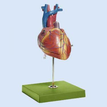 Fötales Herz, 3-4 fach vergrößert