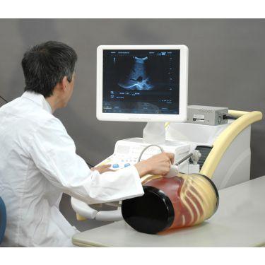 "Kyoto Kagaku Abdominales Ultraschallphantom ""ABDFAN"" - pathologisch"