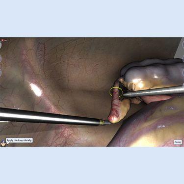 LapSim Erweiterungsmodul Appendektomie