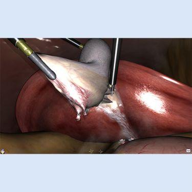 LapSim® Erweiterungsmodul - Cholezystektomie