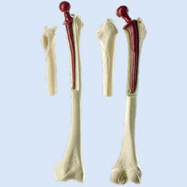 Oberschenkelmodell mit S/P-Prothese