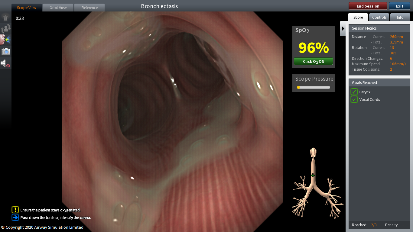 Neu: Pulmonologie Modul für ORSIM Bronchoskopie Simulator